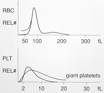 Plt Histogram Normal platelet histogram (2-20 fl).
