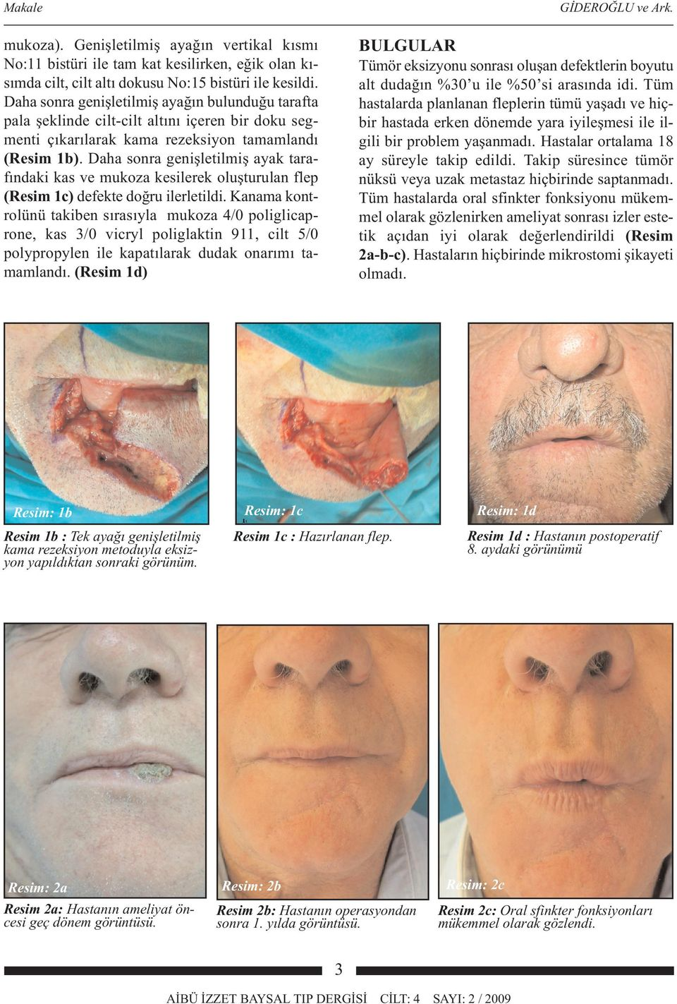 11. Nakajima T, Yoshimura Y, Kami T. Reconstruction of the lower lip with a fan-shaped flap based on the facial artery. Br J Plast Surg. 1984, 37:52-4. 12. McGregor IA.