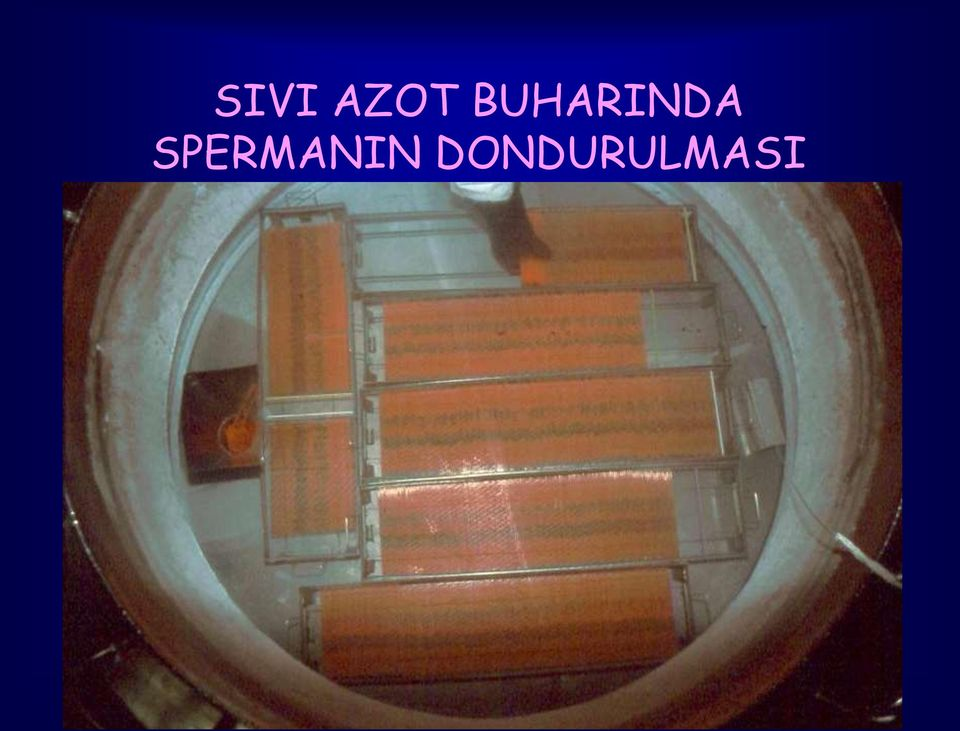 SPERMANIN
