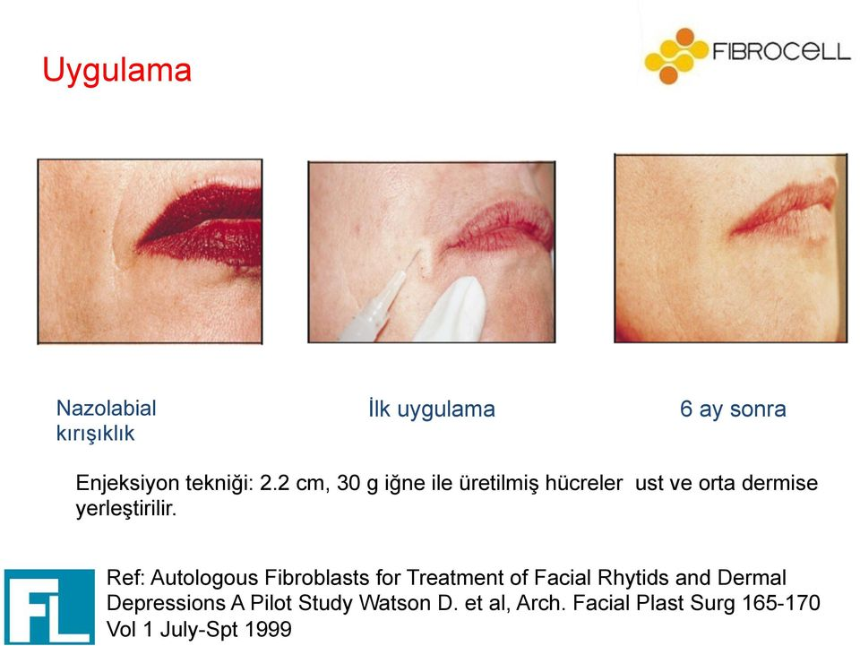 Ref: Autologous Fibroblasts for Treatment of Facial Rhytids and Dermal