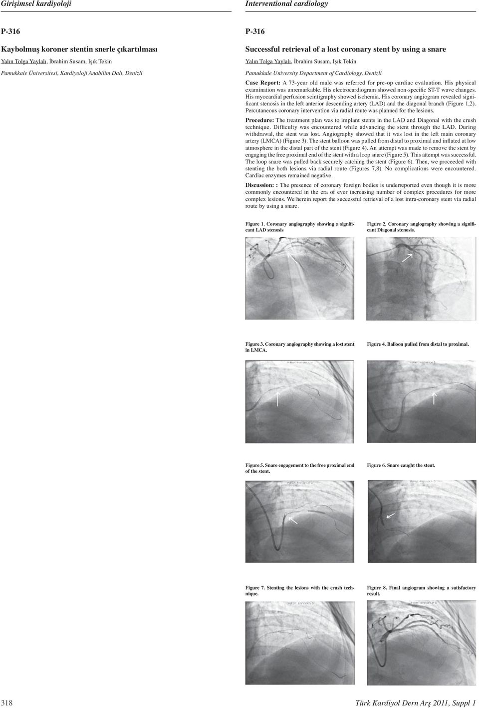 His physical examination was unremarkable. His electrocardiogram showed non-specific ST-T wave changes. His myocardial perfusion scintigraphy showed ischemia.