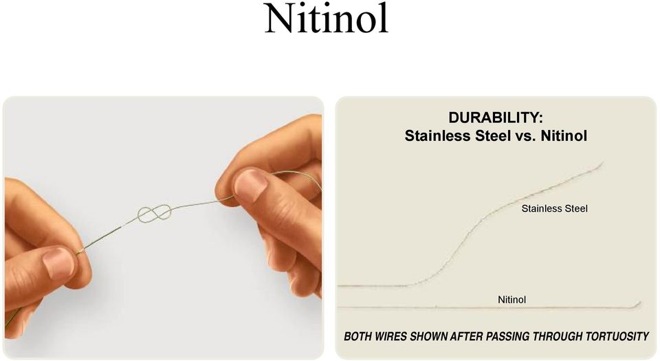 Nitinol Stainless Steel