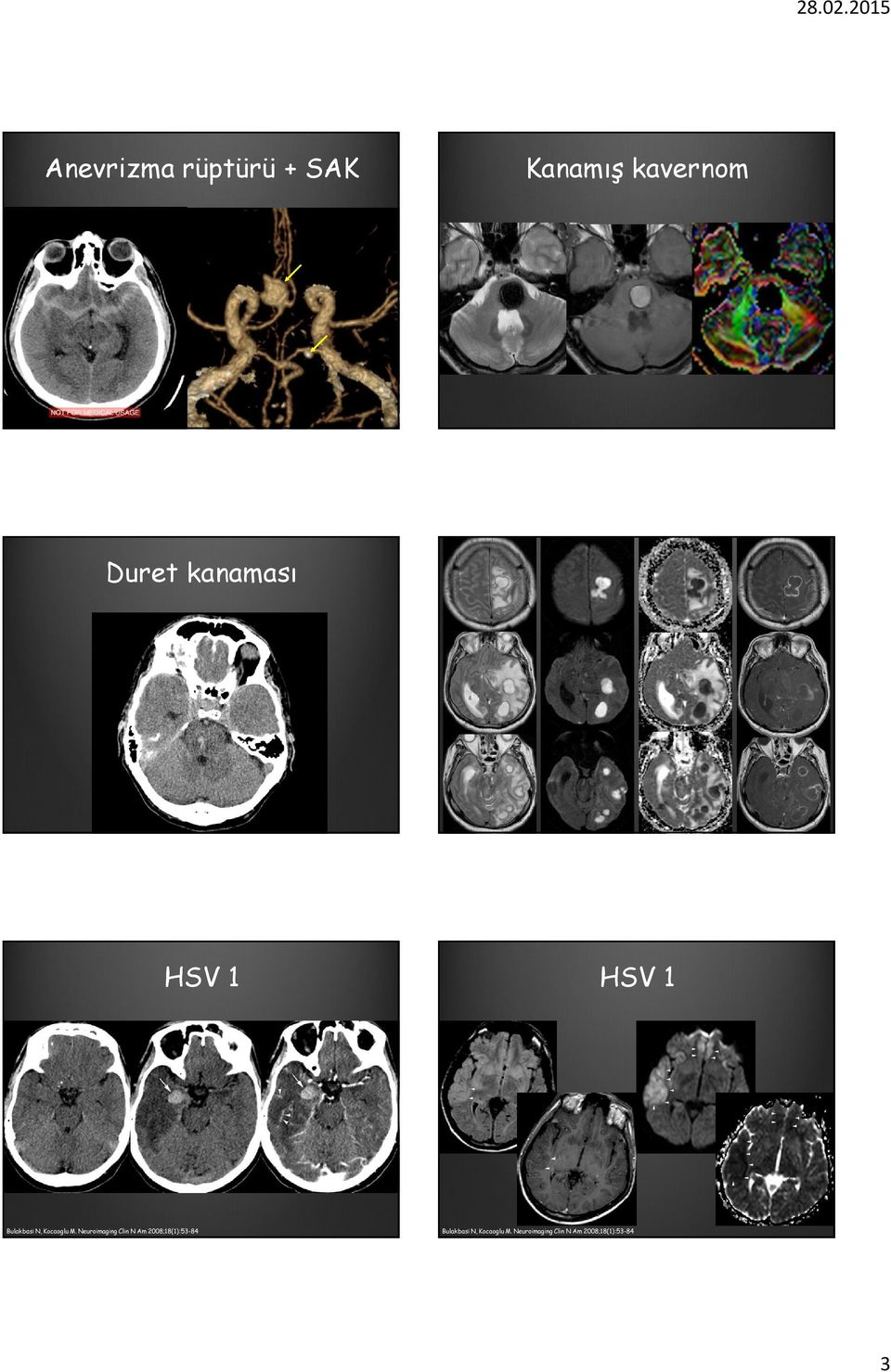 Neuroimaging Clin N Am 2008;18(1):53-84 Bulakbasi