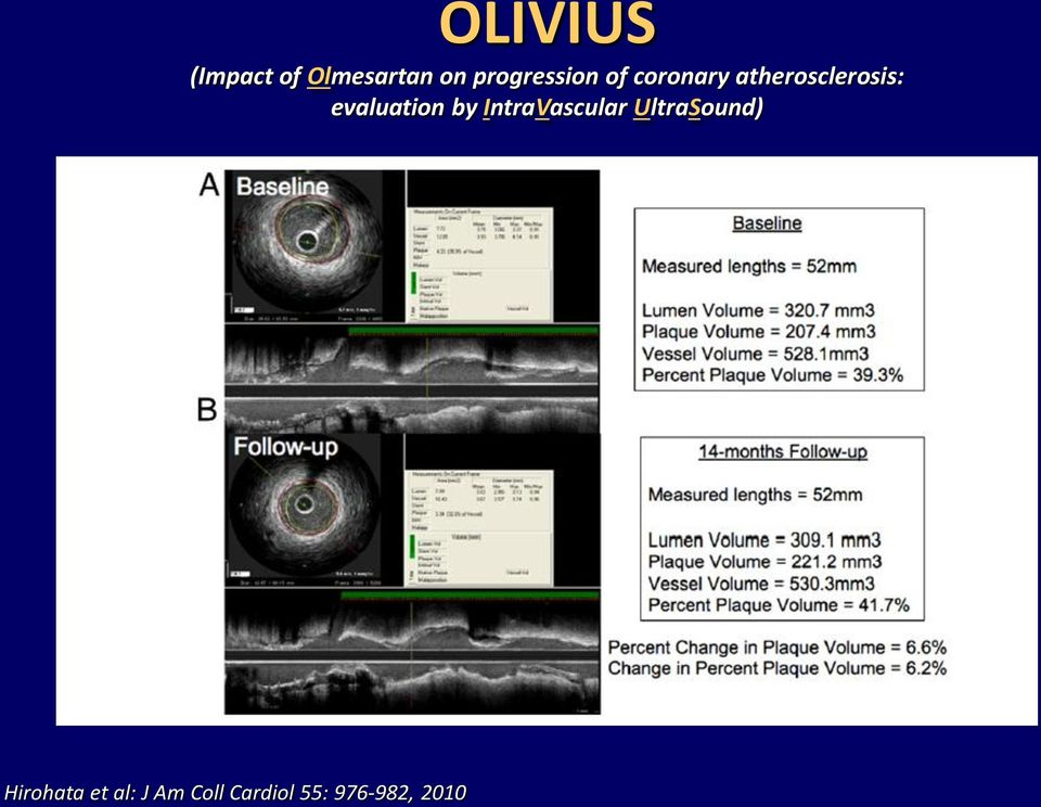 evaluation by IntraVascular UltraSound)