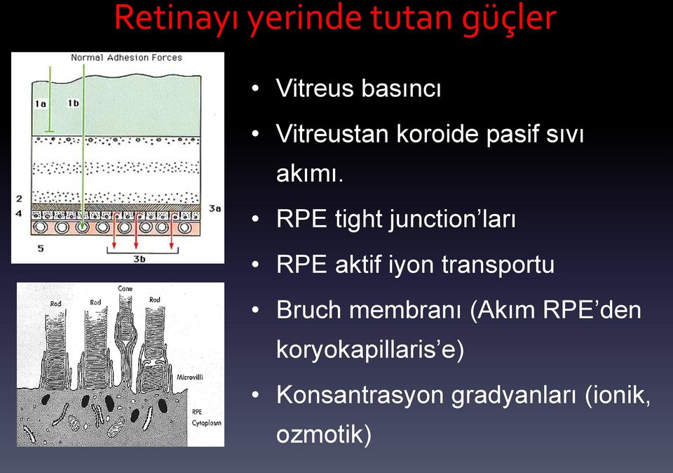 RPE tight junction ları RPE aktif iyon transportu Bruch