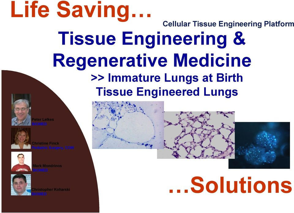 Birth Tissue Engineered Lungs Peter Lelkes Christine Finck