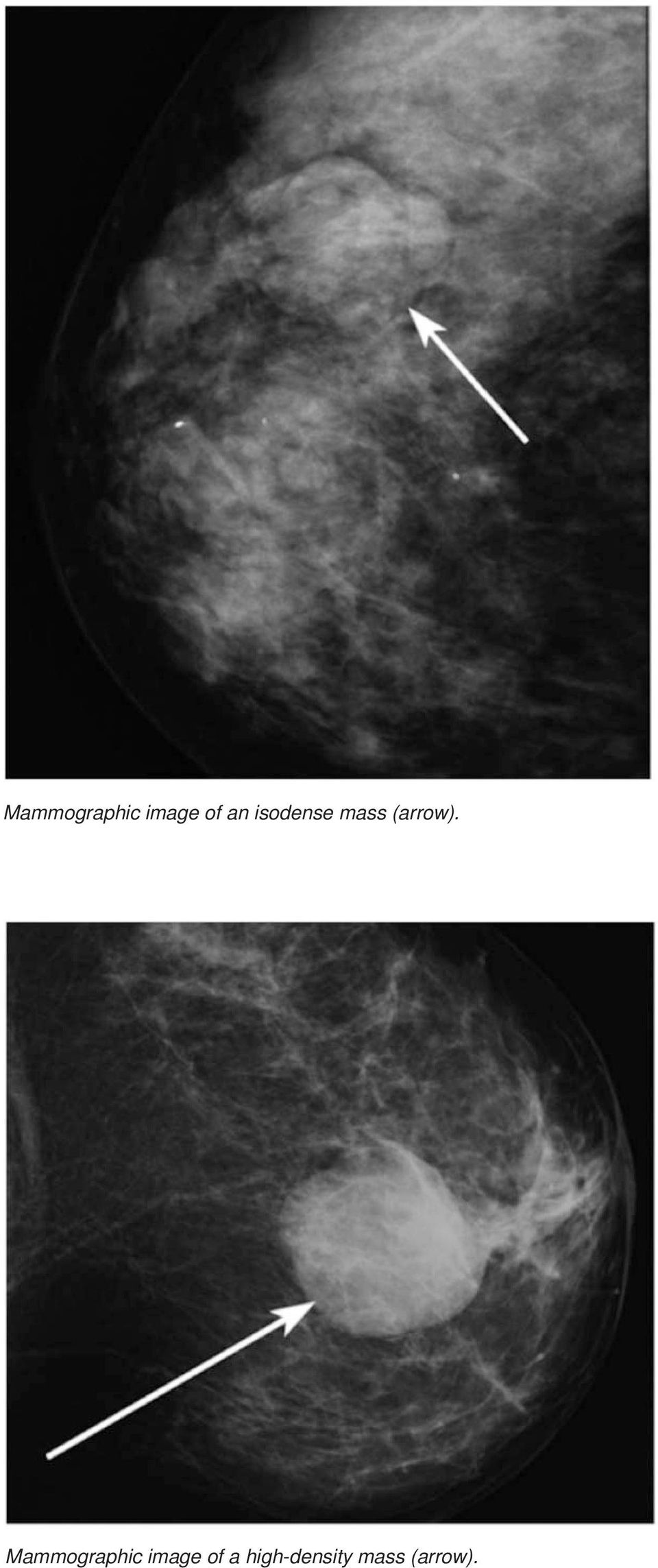 Mammographic image of a
