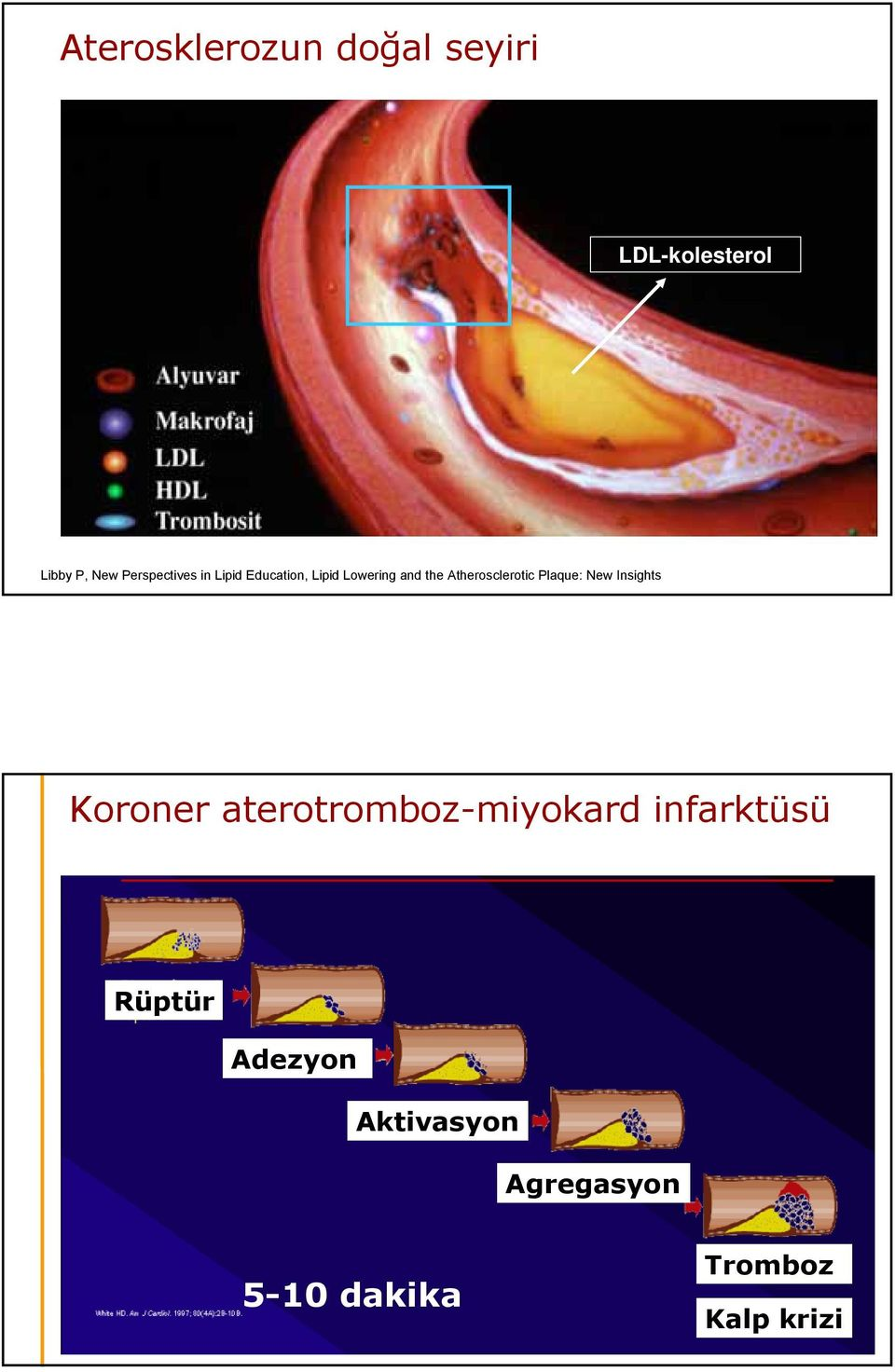Atherosclerotic Plaque: New Insights Koroner