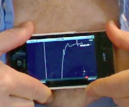 Kaynaklar: iphoneecg Stephen Smith, MD