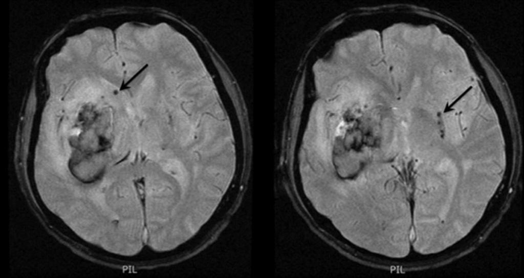 Intracerebral hemorrhage evidenced on gradient echo MR in patients with deep microbleeds (black arrows).